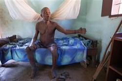 Liberian man with leperasy